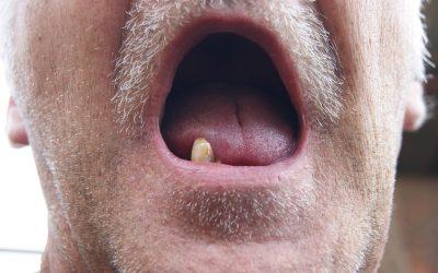 ¿Se puede vivir sin dientes?